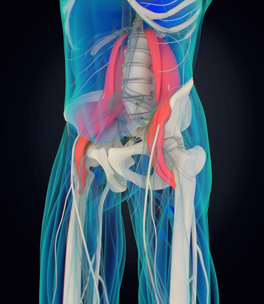 psoas mišice - bolečine v ledjih Zapper Zaper Zaperino
