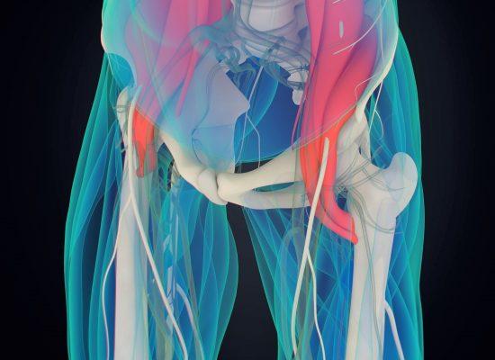 psoas mišice izvor bolečine Zapper Zaper Zaperino