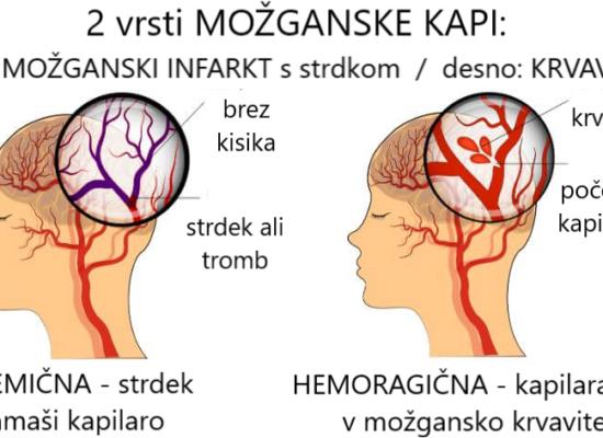 Hemoragična in ishemična možganska kap - preprečuje uživanje drobnjaka Zapper Zaper Zaperino